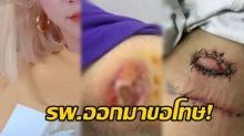 โรงพยาบาลขอโทษ พร้อมลั่นศัลยกรรมสามารถลบรอยแผลเป็นของนักแสงดังได้!