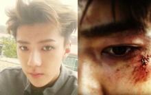 แฟนช็อก!!เซฮุน EXO อัพภาพลงIGด้วยใบหน้าโชกเลือด