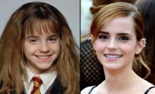 มาดูความเปลี่ยนแปลงของ 11 นักแสดงจากเรื่อง Harry Potter