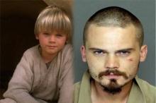 """อึ้งสะเทือนวงการ!! """"อนาคิน สตาร์วอร์"""" อดีตนักแสดงเด็กชื่อดัง ป่วยเป็นโรคจิต"""