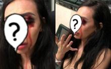 ช็อกหนัก! ดาราสาว ถูกชิงมือถือ ตบเลือดออกตา-กระดูกแก้มแตก!!