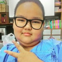 อัพเดท!! อาการล่าสุด น้องซีดี ดาราเด็กที่ป่วยเป็นโรคหายาก โมยาโมยา