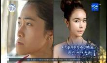 ครั้งแรกของสาวไทย! กับการร่วมรายการเรียลลิตี้ศัลยกรรมเปลี่ยนชีวิตของเกาหลี