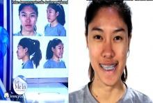 'นางฟ้าชัดชัด'! สาวไทย ศัลยกรรมเปลี่ยนชีวิต คนที่2  หน้าบิดเบี้ยวผิดรูป