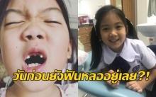 """เอ๊ะ.. วันก่อนยังฟันหลออยู่เลย มาวันนี้ทำไม """"น้องวันใหม่"""" ฟันขึ้นครบแล้ว?!"""