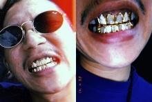 เงินเหลือกิน-เหลือใช้? แจ๊ส ทำฟันทองฝังเพชร หรูหราทั้งแผงเหงือก